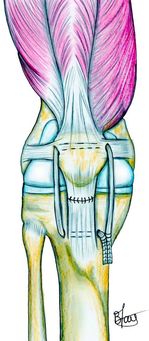 Réparation du tendon rotulien